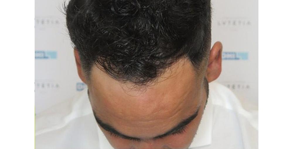after greff cheveux Tunisie