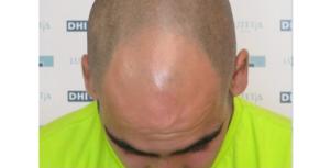 Greffe de cheveux en Tunisie