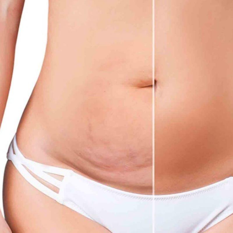 reprise-abdominoplastie-ratee